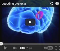decoding dyslexia video - how the brain process language, words and sounds // dyslexia, LD Dysgraphia, Vision Therapy, Educational Activities, Stem Activities, Classroom Behavior, Neurology, Decoding, Learning Disabilities, Aspergers