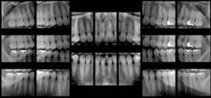 """A """"full series of x-rays"""". This way we can see all the teeth and all the roots. Very helpful for diagnosing! A """"full series of x-rays"""". This way we can see all the teeth and all the roots. Very helpful for diagnosing! Dental Assistant Study, Dental Hygiene School, Dental Life, Dental Humor, Dental Teeth, Dental Hygienist, Children's Dental, Teeth Implants, Dental Implants"""