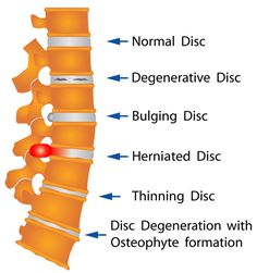 Spinal Stenosis a closer look.  I have osteophytes too, for the common human those are bone spurs.