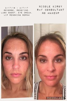 This is Nicole, fresh faced and filter free. She had 'good' skin before, but knew it could be better.  Using Reverse to clear up the sundamage, then tackling wrinkles with Redefine.  Check out those lashes too!  Lash Boost!  For 10% off retail and FREE shipping straight to your door, contact me: 636-248-4463 or ReaganOglesby@gmail.com