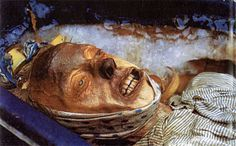 John Torrington of the Franklin expedition, buried in permafrost in 1846. Uncovered for forensic study in modern day.
