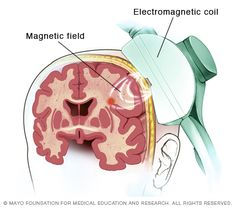 Repetitive transcranial magnetic stimulation (rTMS) Transcranial magnetic stimulation (TMS) is a noninvasive procedure that uses magnetic fields to stimulate nerve cells in the brain to improve symptoms of depression. TMS is typically used when other depression treatments haven't been effective