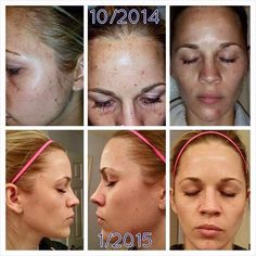 This is fellow consultant Heather! (Lovely name) ;) Unblemish for 60 days then Reverse and multi-function eye cream for 30 days!! Really amazing!