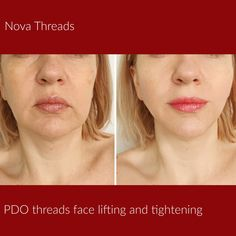 PDO threads treatment - non-surgical procedure designed to rejuvenate your face and neck without surgery   Dr. Gedz at Revitta   #manhattan #ny   212.535.1201   #pdolift #threadlift #facelift #necklift #face #beauty #cosmetic #newyork #neck #skin #newyorker #pdothreads #skintightening #newcosmetic #look #rejuvenate #woman #girl #cool #newyorkcity #lookgood #beautiful #gorgeous #novathreads #newyorkbeauty #newyorkstyle  #beautytreatment #newbeauty Laser Skin Tightening, Thread Lift, Facial Aesthetics, Neck Lift, New York Beauty, Skin Clinic, New Cosmetics, Cosmetic Procedures, Dermal Fillers