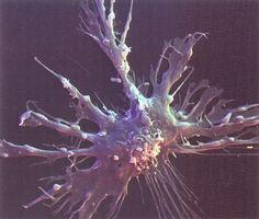 Dendritic cell - my favorite leukocyte