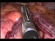 Vertical Sleeve Gastrectomy    (Disclaimer: Some individuals might find the video a bit graphic.)
