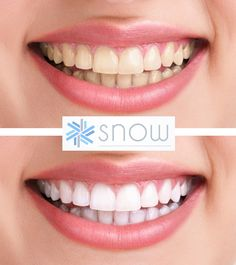 Snow's at-home teeth whitening kit is used by Celebrities for a reason. It's incredibly effective and there's nothing like it on the market. VIEW BEFORE/AFTERS