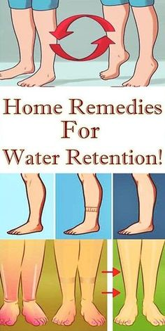 Home Remedies For Water Retention!