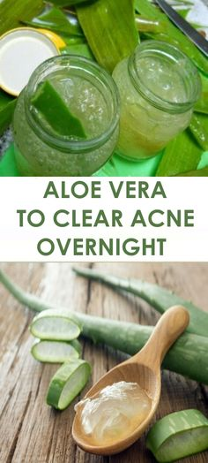 Aloe Vera to Clear Acne Overnight
