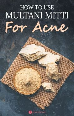 How To Use Multani Mitti For Acne: Multani mitti, or fuller's earth, can make your battle against acne super easy. It has been long used in face masks that help give you clear and healthy skin. #skin #skincare #acne Overnight Pimple Remedies, Pimples Remedies, Homemade Shampoo, Homemade Facials, Homemade Conditioner, Hair Conditioner, Acne And Pimples, Acne Face, Fullers Earth