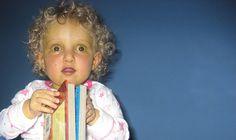 crouzon syndrome - AD | Pediatric Board Exam Studying ...