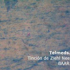OBSERVACIÓN MICROSCÓPICA DE LAS TINCIONES | Pearltrees