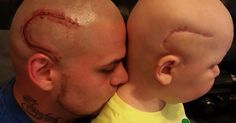 Tattoos: Dad tattoos son's cancer scar on his own head; Tattoo removal gone wrong - Compilation - TattooDesigns.