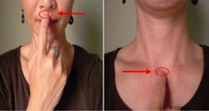 These 4 acupressure points can immediately alleviate hiccups! Natural Cures, Natural Health, Get Rid Of Hiccups, Diverticulitis, Acupressure Points, Best Diets, Health Diet, Medicinal Plants, Natural Treatments