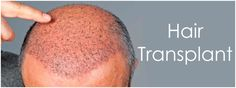 Zayn Skin Clinic offers hair transplant in Pune at affordable cost with 100% proven good. We offer both FUT and FUE hair transplant techniques. Check Review Hair clinic in Pune  http://www.zaynskinclinic.com/hair-transplantation.php