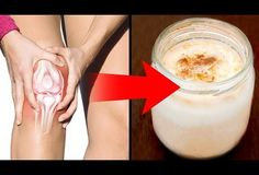 Homemade Remedies for Arthritis and Joint Pain - Everyday Remedy Arthritis Remedies, Headache Remedies, Headache Relief, Health Remedies, Home Remedies, Natural Remedies, Migraine Headache, Pain Relief, Knee Arthritis