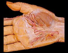 Removal of the skin and the layer of tough tissue beneath it, the palmar fascia, reveals a complex arrangement of blood vessels and nerves in the hand and wrist