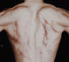Scars on Charsid's back from prison.
