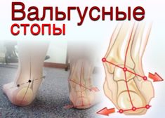 Вальгусная (плоско-вальгусная) деформация стопы у ребенка – это наиболее часто встречающаяся в детской травматологии и ортопедии патология.