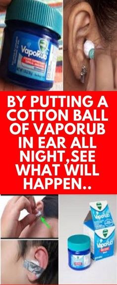 You Will Have THIS Surprising Effect If You Put A Cotton Ball In Your Ear All Night. amazing health healthy living remedies remedy life hacks healthy lifestyle good to know viral vapor rub vicks Natural Remedies For Allergies, Allergy Remedies, Natural Headache Remedies, Natural Remedies For Anxiety, Health Remedies, Herbal Remedies, Home Remedies Ear Ache, Health And Wellness, Home Remedies