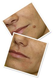 All-natural, safe & time-tested solution to dry up and eliminate skin tags rapidly. Say goodbye to expensive medical shots or invasive surgery! Works In Hours,Naturally & Painlessly . You don't need to worry about painful and expensive medical procedure Home Remedy For Cough, Cold Home Remedies, Cough Remedies, Herbal Remedies, Natural Remedies For Anxiety, Natural Cures, Natural Healing, Coldsore Remedies Quick, Skin Tag On Eyelid