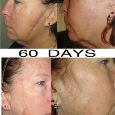 Nerium real results..can you believe how well this works on scars?!  http://bingmom.nerium.com