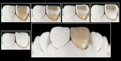 Dental Technician, Noritake, Dentistry, Teeth, Anatomy, Cart, Smile, Album, Humor