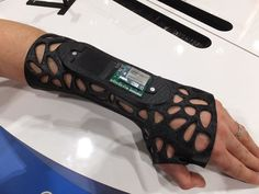 Osteoid cast modified to become the Intel Smart Splint. One usage was for those with cerebral palsy. Over time the muscles contract to turn the hands inward. Pressure detection can act as an early warning sign, as well as for post-operative swelling