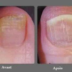 """Comment se débarrasser des champignons des ongles d'une façon naturelle eddenya.com La mycose des ongles, plus simplement appelée """"champignons"""", peut infecter aussi bien les ongles des orteils que ..."""