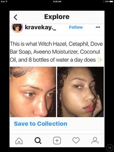If you like what you see follow me.! PIN: @kiddneann✨GIVE ME MORE BOARD IDEASHave you heard of that new Gane app? Here's $5 to try it! http://beautifulclearskin.net/category/clear-skin-tips/ #Organicremediesforacne