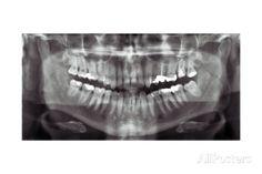 size: Giclee Print: Panoramic Dental X-ray Art Print : Artists Poster Prints, Art Prints, Cool Posters, Figurative Art, Find Art, Framed Artwork, Dental, Giclee Print, Pop Culture