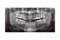 Panoramic Dental X-ray Giclee Print - AllPosters.co.uk