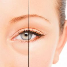 How to reduce under-eye bags