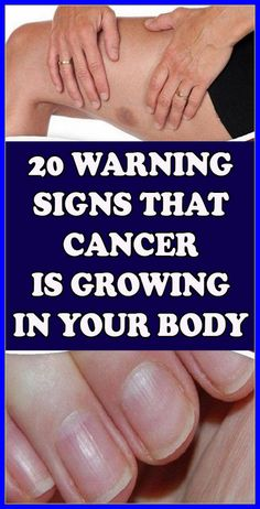 20 Warning Signs that Cancer is Growing in Your Body Natural Remedies For Allergies, Natural Headache Remedies, Natural Remedies For Anxiety, Beauty Tips For Skin, Health And Beauty, Beauty Advice, Beauty Skin, Beauty Hacks, Lose Weight In A Month