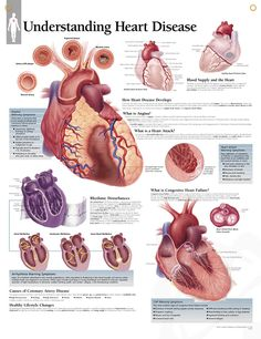 Cardiovascular Disease anatomy poster details normal heart anatomy ...