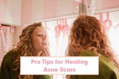 Acne Scars? Here's How to Start Healing   Beautylish