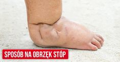 Najlepszy domowy sposób na spuchnięte stopy
