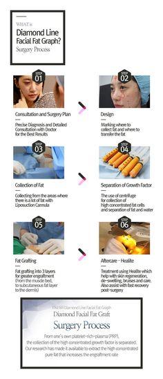 Facial Fat Graft | Korean Plastic Surgery | Fresh Plastic Surgery Barista Machine, Korean Plastic Surgery, Korean Facial, Growth Factor, Fat, Fresh