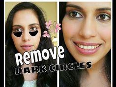 Get Rid of DARK CIRCLES under eyes Remove Dark Circles DIY Indian Beauty Treatment Remedy