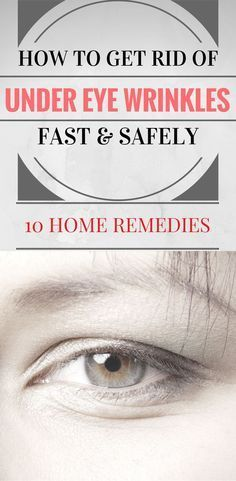 How to get rid of under eye wrinkles fast and safely. 10 home remedies.
