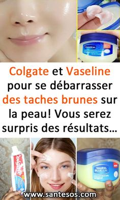 Colgate and Vaseline to get rid of brown spots on the skin! Colgate and Vaseline to get rid of brown spots on the skin! Sun Spots On Skin, Brown Spots On Hands, Mascara Hacks, Receding Gums, Facial Massage, Beauty Recipe, Skin Care Tips, Whitening, Body Care