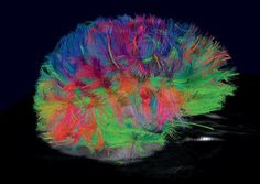 Diffusion spectrum imaging, generated from a living human brain, shows a reconstruction of the entire brain.