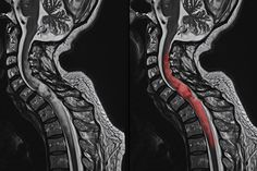 Spinal Tumor Surgery in Los Angeles, CA