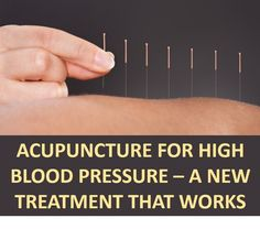 Acupuncture For High Blood Pressure – A New Treatment That Works