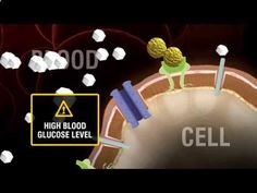 """Insulin: What is the difference between Type 1 and Type 2 diabetes? - CLICK HERE for the Big Diabetes Lie #diabetes #diabetes1 #diabetestype2 #diabetestreatment If your doctor recommends you start insulin, you might think """"If I'm now on insulin, do I have Type 1 diabetes instead of Type 2 diabetes?"""" Watch more videos at - #Diabetes"""