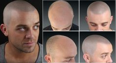 Scalp Micropigmentation: What does it do? • Give the look of a full, youthful head of cropped hair • Restore hairlines on part-bald or fully bald heads • Hide scars, burns and birthmarks • Boost the visual effect of a hair transplant For more information visit: http://www.skalp.com/