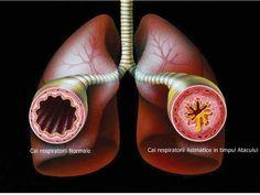 Vindeca Astmul in mod Natural la tine Acasa | Secretele