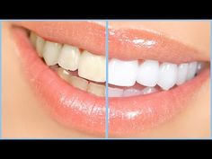 Teeth Whitening Before And After - 31 Sample Teeth Whitening Before And After