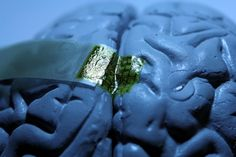 Ultrathin Silk-Based Electronics Makes Better Brain Implants