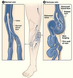 How To Naturally Improve Varicose Veins | http://improvedaging.com/how-to-naturally-improve-varicose-veins/